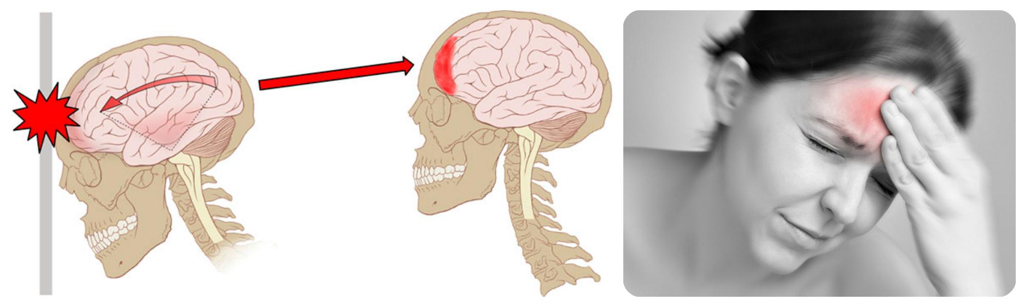 Тяжесть в голове после сотрясения мозга
