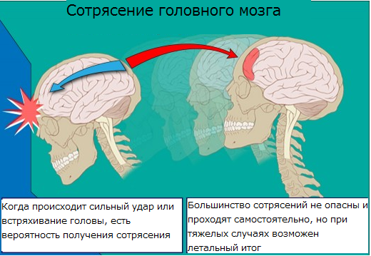 При сотрясении мозга ударился головой