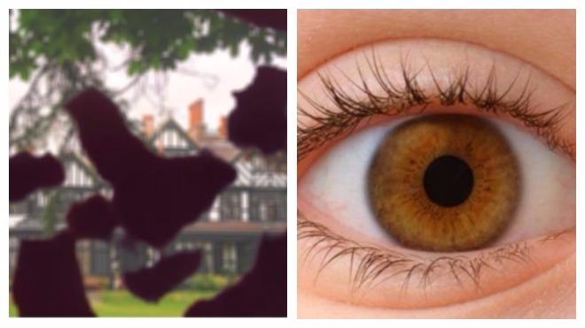 Симптоми діабетичної ретинопатії