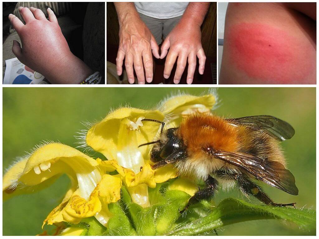 Пчела – самое трудолюбивое насекомое, знакомое всем с детства благодаря множеству сказок и мультфильмов.
