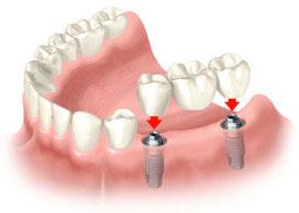 Зубні протези на імплантатах. Сайт стоматології.  e4e74b0c533b8